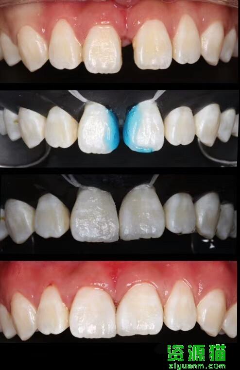 門牙有縫怎么治?找牙醫是最好的解決方法