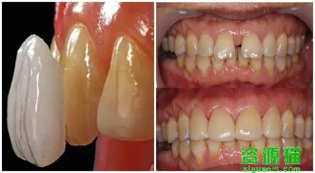 門牙牙縫太難看!牙醫教你4招關閉牙縫的方法